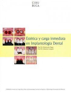 Estética y carga inmediata en implantología oral