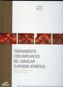 tratamiento con implantes del maxilar superior atrófico
