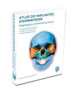 atlas implantes cigomaticos