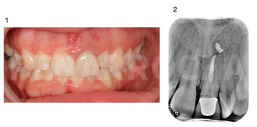 caso clinico implante inmediato post extraccion con carga inmediata 2 1