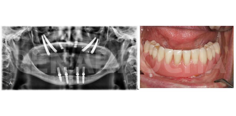 caso clinico implantes cigomaticos