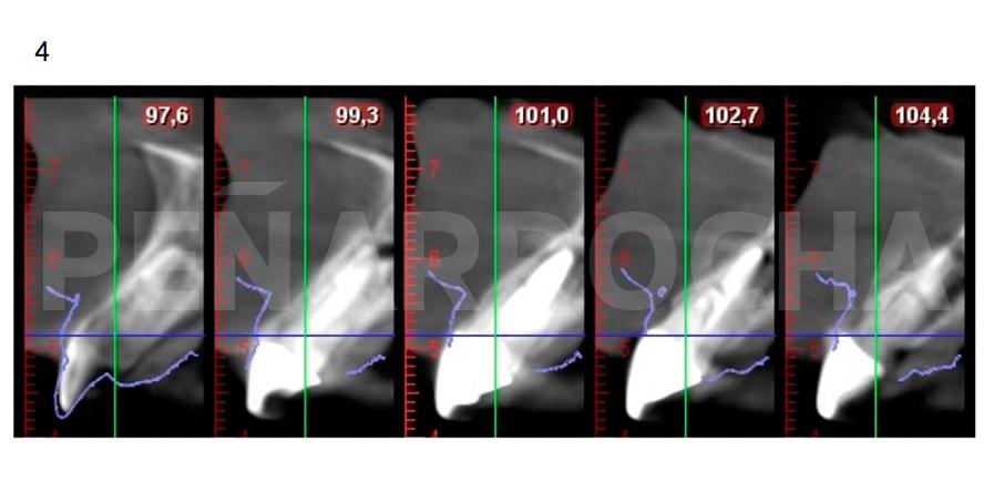 tomografia computerizada