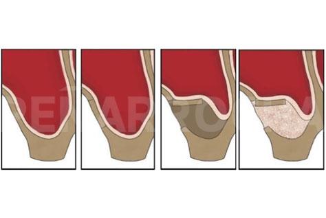 Elevacion de seno directa o lateral, sin colocacion de implantes