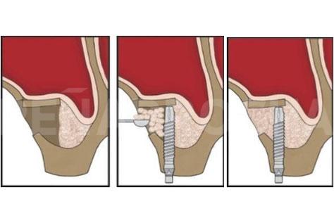 Elevación de seno directa o lateral con implante simultáneo