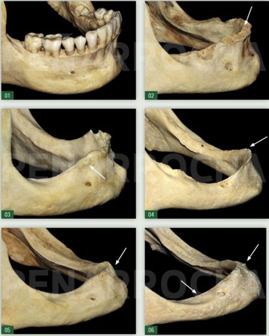 reabsorcion tras perdida de dientes