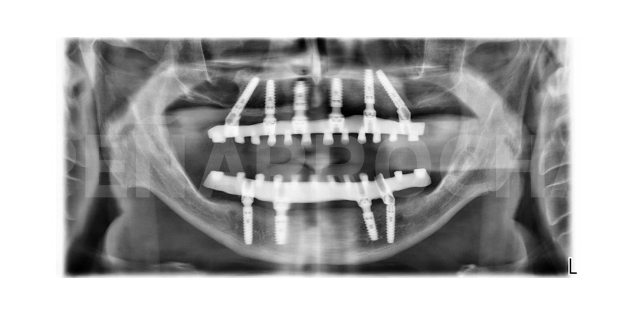 implantes carga inmediata arco completo figura 17